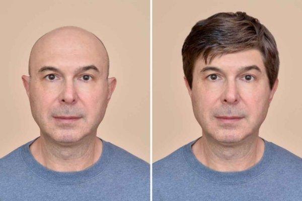 Alopecia Hombre 2