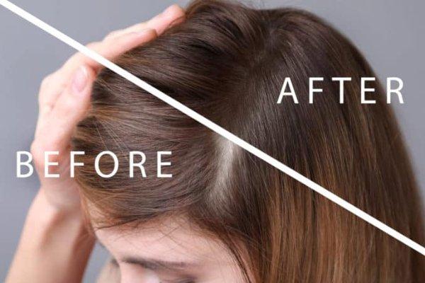 Alopecia Mujer 2