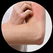 Img Bola Dermatitis