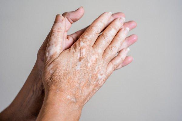 Img Caja Vitiligo1