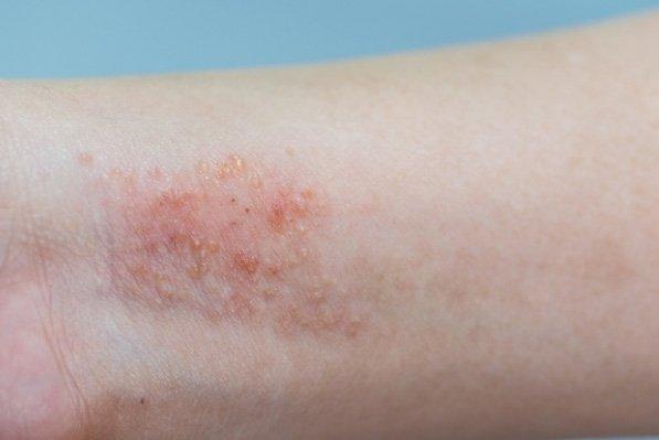 Img Dermatitis1