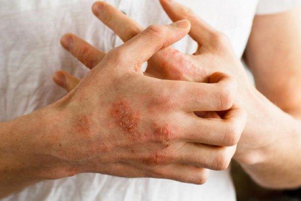 Img Dermatitis2