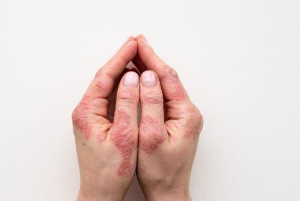 Img Psoriasis 2